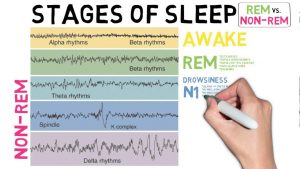 The different stages of REM and NON REM