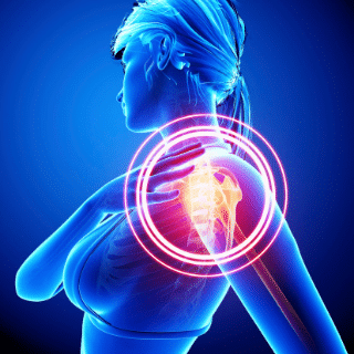 A woman with shoulder pain